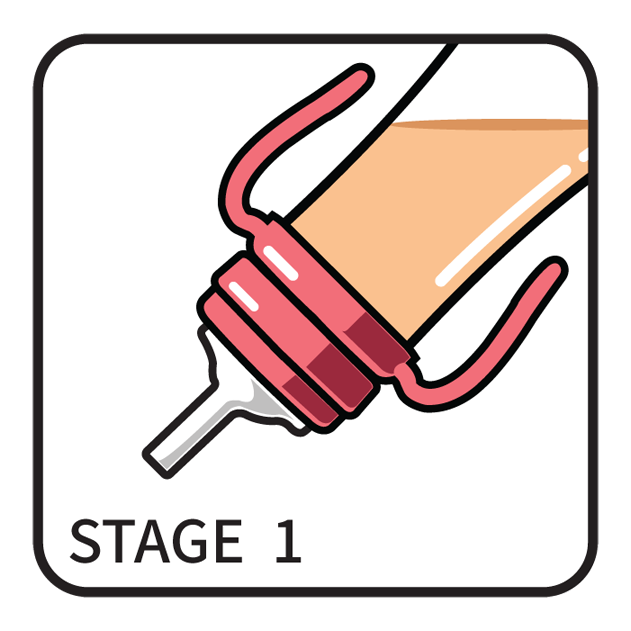 B_STAGE_1.png